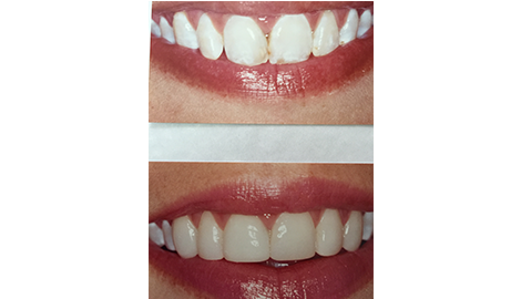 Nu - Smile Dental | Ramsey, NJ | (201) 327-6139
